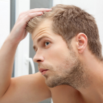 Unwanted hair loss is no longer for life now a hair transplant is available to everyone